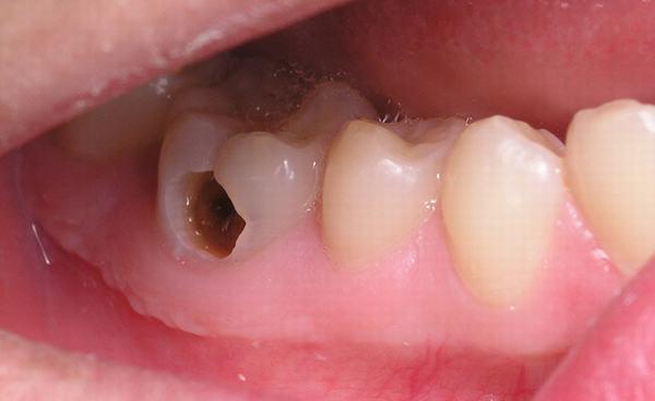 Các giai đoạn viêm tủy răng