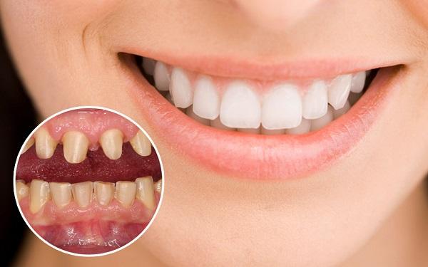 Trồng răng giả tháo lắp giá bao nhiêu tại nha khoa Nevada