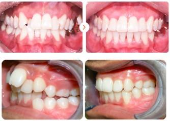 Phương pháp chỉnh răng mọc lệch không cần niềng