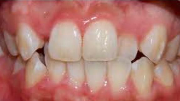 Chỉnh sửa răng mọc lệch bằng phương pháp nào tốt nhất