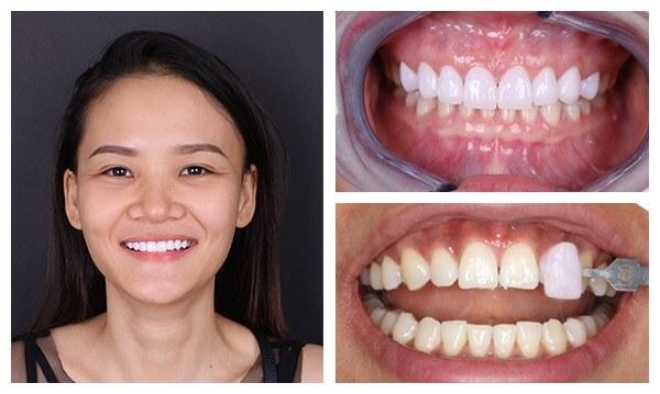 Răng sứ Necara có tốt không