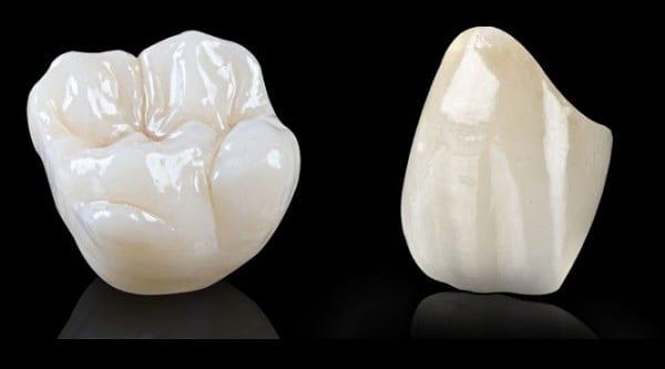 Răng sứ Nacera