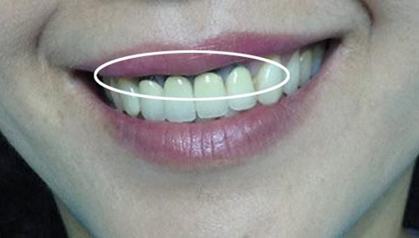 so sánh răng sứ kim loại và răng sứ toàn sứ