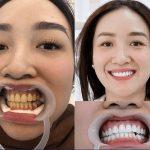 [Kiến thức nha khoa] Tẩy trắng răng có đau không?