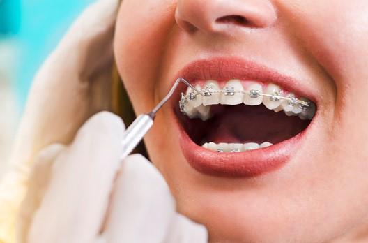 Giá niềng răng mắc cài kim loại bao nhiêu tiền?