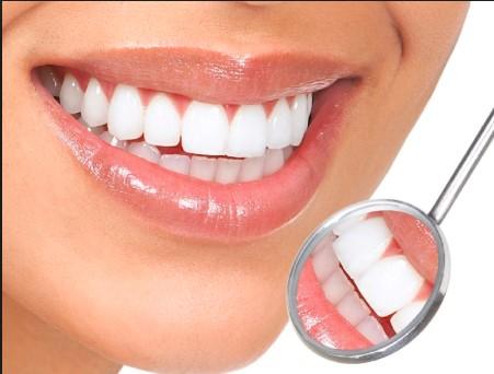 Bọc răng sứ bao nhiêu tiền tại Hà Nội