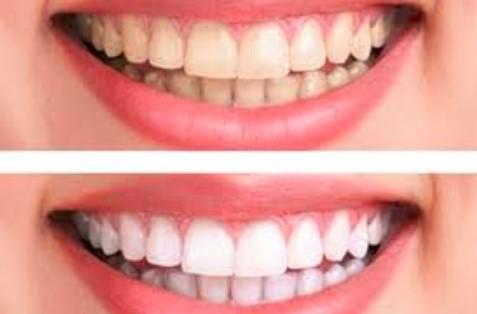 Giá tẩy trắng răng TPHCM tiền bao nhiêu?