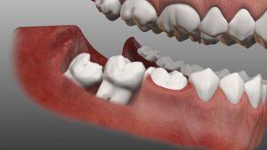Nhổ răng khôn mất bao nhiêu thời gian