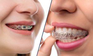 niềng răng không mắc cài giá bao nhiêu tiền, niềng răng bao nhiêu tiền