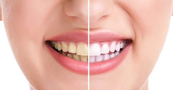 Chữa sâu răng tận gốc bằng cách nào