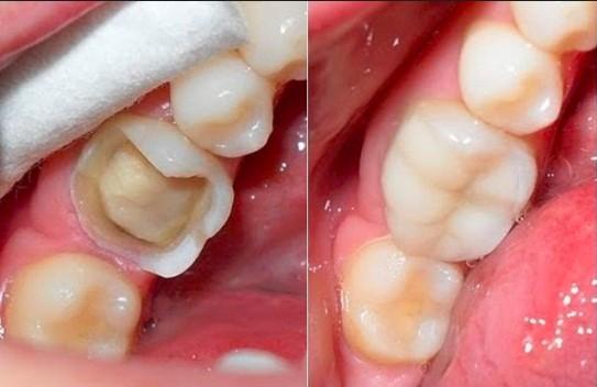 Bị vỡ răng hàm nhất thiết thực hiện sao phục hồi trong vòng 24h?