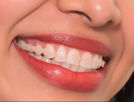 Niềng răng trong suốt trả góp có được áp dụng tại nha khoa không?