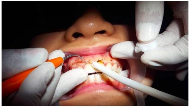 Cắt lợi trùm răng cửa có đau không