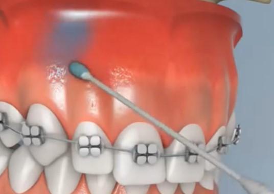 đánh lún răng, đánh lún răng là gì, đánh lún răng chữa hở lợi, đánh lún răng cửa, đánh lún răng bằng dây cung, đánh lún răng có đau không, đánh lún răng bao nhiêu tiền, đánh lún răng trong bao lâu, đánh lún răng mất bao lâu, đánh lún răng hàm trên, quy trình đánh lún răng