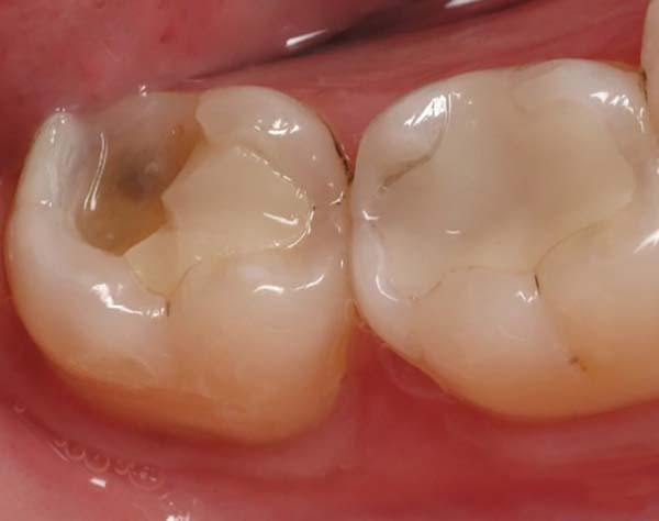 đau nhức răng hàm dưới, đau răng hàm dưới, nhức răng hàm dưới, đau nhức răng hàm trong cùngnhức răng hàm dưới bên phải, nhức răng hàm dưới bên trái, bị nhức răng hàm dưới, đau răng hàm dưới bên phải, bị đau răng hàm dưới, đau răng hàm dưới trong cùng, đau nhức răng, đau răng sâu phải làm thế nào, nhức chân răng hàm dưới, đau răng cấm hàm dưới, đau răng hàm trong cùng, bị đau răng hàm, răng hàm bị sâu đau nhức, đau nhức răng phải làm sao, đau nhức răng sâu, nhức răng trong cùng hàm dưới, đau răng trong cùng hàm dưới, đau sâu răng hàm, nhức răng hàm trên phải làm sao, đau răng cửa hàm dưới, sâu răng hàm dưới trong cùng