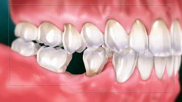 nhổ răng số 6, nhổ răng số 6 hết bao nhiêu tiền, nhổ răng số 6 hàm dưới, nhổ răng số 6 có nguy hiểm không, tác hại của việc nhổ răng số 6, nhổ răng số 6 hàm trên,nhổ răng số 6 bao lâu thì lành,niềng răng nhổ răng số 6
