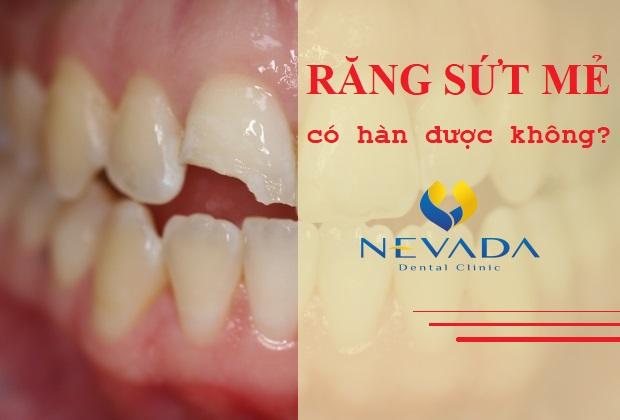 hàn răng mẻ,hàn răng bị mẻ,răng mẻ có hàn được không,răng sứt mẻ có hàn được không,hàn răng mẻ có đau không,hàn răng cửa bị mẻ,răng sứt mẻ có hàn được không,răng bị mẻ có hàn được không,răng mẻ ê buốt,răng mẻ có trám được không,răng mẻ bị nhức, răng mẻ thiếu chất gì,răng mẻ bị buốt,răng bị mẻ thì nên làm gì,răng bị mẻ lớn,răng bị mẻ đau nhức,răng bị mẻ ở chân răng,răng bị mẻ và lung lay
