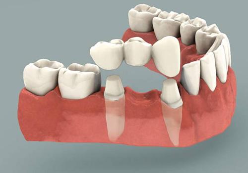 bọc răng sứ nguyên hàm giá bao nhiêu tiền,bọc răng sứ nguyên hàm giá bao nhiêu,bọc răng sứ nguyên hàm,chi phí bọc răng sứ nguyên hàm,bọc răng sứ nguyên hàm bao nhiêu tiền,có nên bọc răng sứ nguyên hàm không,phương pháp bọc răng sứ nguyên hàm,bọc răng sứ toàn hàm,bọc răng sứ 2 hàm giá bao nhiêu,bọc răng sứ cả hàm giá bao nhiêu,bọc răng sứ toàn hàm giá bao nhiêu