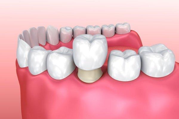 bọc sứ răng hàm, bọc sứ răng hàm trên, bọc sứ răng hàm mặt, quy trình bọc sứ răng hàm
