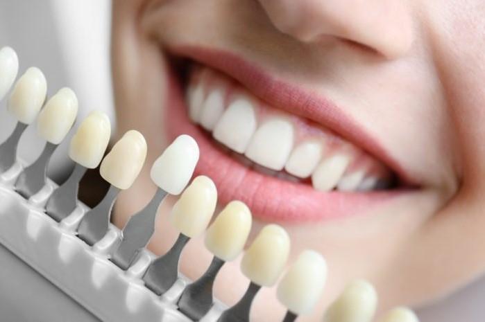 lưu ý tẩy trắng răng, lưu ý khi tẩy trắng răng, lưu ý sau khi tẩy trắng răng,lưu ý khi tẩy trắng răng tại nhà,những lưu ý khi tẩy trắng răng, những lưu ý khi tẩy trắng răng tại nhà, lưu ý trước khi tẩy trắng răng,tẩy trắng răng, giá tẩy trắng răng, có nên tẩy trắng răng, cách tẩy trắng răng tại nhà, những điều cần lưu ý sau khi tẩy trắng răng, lưu ý khi đi tẩy trắng răng, các lưu ý khi tẩy trắng răng, cần lưu ý khi tẩy trắng răng