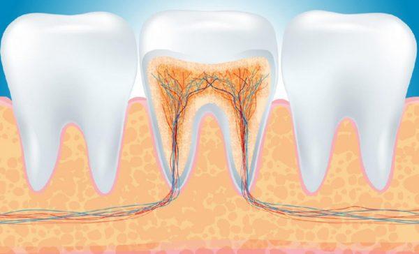 cách làm chết tủy răng tại nhà, cách làm chết tủy răng, thuốc làm chết tủy răng, cách làm chết tủy răng, nhét thuốc làm chết tủy răng, làm chết tủy răng tại nhà