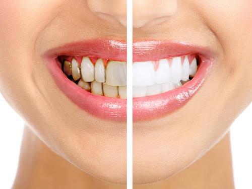 răng sứ veneer, răng sứ veneer là gì, răng sứ veneer có tốt không, răng sứ veneer có tốt không webtretho, răng sứ veneer giá bao nhiêu, giá răng sứ veneer