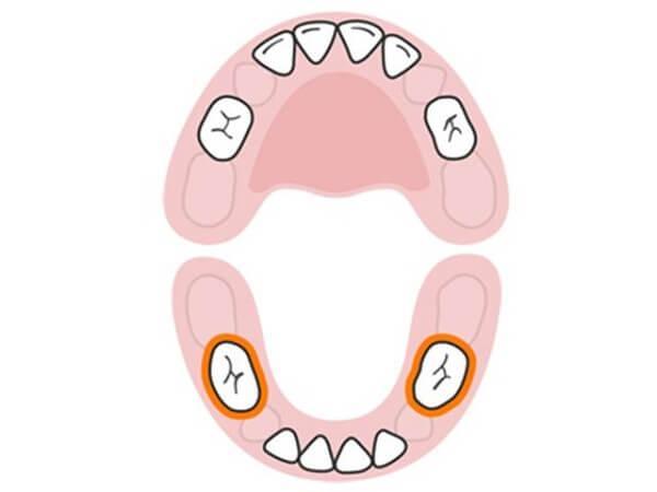 bé mọc răng hàm, sốt mọc răng hàm kéo dài bao lâu, bé mọc răng hàm trong bao lâu, bé mọc răng hàm không chịu ăn, giảm đau cho bé mọc răng hàm, bé sốt mọc răng hàm mấy ngày, bé mọc răng hàm bị đau, bé mọc răng hàm bỏ ăn, dấu hiệu bé mọc răng hàm, khi nào bé mọc răng hàm, biểu hiện bé mọc răng hàm, bé mọc răng hàm biếng ăn, bé mọc răng hàm khóc đêm, mấy tuổi bé mọc răng hàm, trẻ 5 tuổi mọc răng hàm, dấu hiệu trẻ mọc răng, trẻ 6 tuổi mọc răng hàm bị sốt