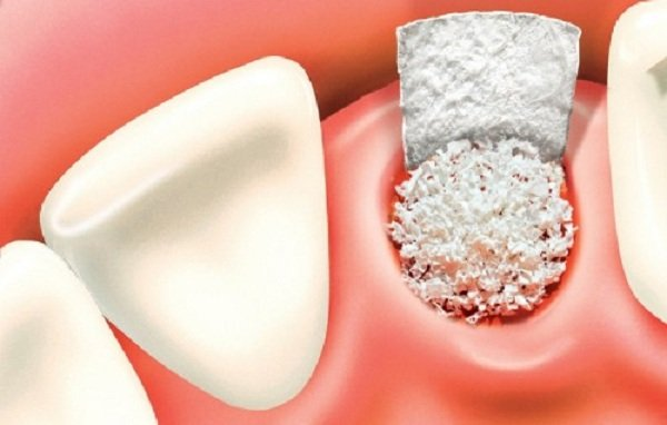 màng trắng sau khi nhổ răng, màng trắng sau khi nhổ răng là gì, xuất hiện màng trắng sau khi nhổ răng, dấu hiệu nhiễm trùng sau khi nhổ răng, sưng nướu sau khi nhổ răng, nhổ răng bị mưng mủ, nhiễm trùng, nhiễm trùng sau khi nhổ răng, nhiễm trùng sau nhổ răng, mảng trắng sau nhổ răng, chỗ nhổ răng có màu trắng, vết nhổ răng có màng trắng, ổ răng sau nhổ có mùi hôi, nhổ răng bị nhiễm trùng, nhổ răng khôn bị nhiễm trùng, dấu hiệu bị nhiễm trùng khi nhổ răng khôn, dấu hiệu nhiễm trùng sau khi nhổ răng khôn, dấu hiệu của nhiễm trùng răng, dấu hiệu viêm nhiễm sau nhổ răng