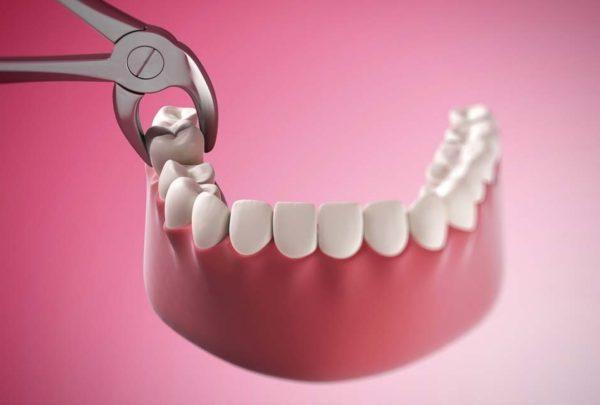 hiện tượng răng bị nứt nên làm gì, răng bị nứt, răng bị nứt có tự lành, răng bị nứt nhẹ, răng bị nứt vỡ, răng bị nứt nên làm gì, hiện tượng răng bị nứt, răng bị nứt đôi, tại sao răng bị nứt, răng bị nứt có sao không, răng bị nứt phải làm sao, răng bị nứt có trám được không, răng bị nứt chân, răng bị nứt có lành lại không, răng bị nứt nẻ, răng bị nứt làm sao, răng bị rạn nứt, chân răng bị nứt, xử lý răng bị nứt, cách điều trị răng bị nứt, cách khắc phục răng bị nứt, nguyên nhân răng bị nứt