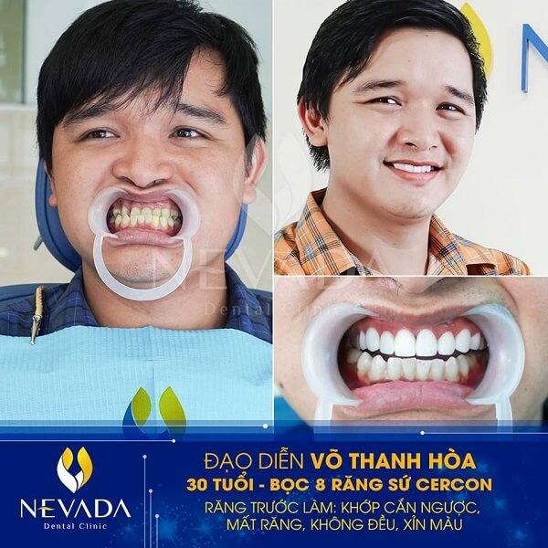 mài răng nanh, mài răng nanh bao nhiêu tiền, mài răng nanh giá bao nhiêu, mài răng nanh nhọn, có nên mài răng nanh, có nên mài răng nanh không, mài răng nanh có đau không