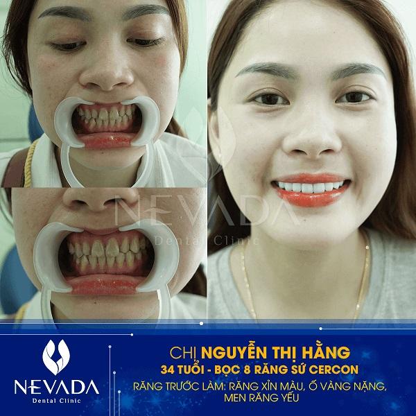 Khách hàng thực hiện mài răng – bọc sứ tại Nha khoa Nevada