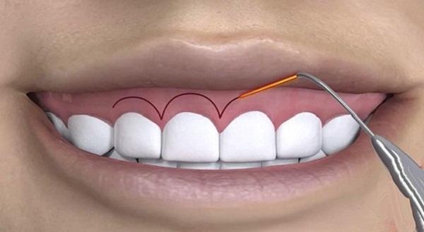 mài xương ổ răng, mài xương ổ răng giá bao nhiêu, mài xương ổ răng chữa hô, mài xương ổ răng có hại không, mài xương ổ răng là gì, mài xương ổ răng có nguy hiểm không, mài xương ổ răng có đau không, chi phí mài xương ổ răng, quy trình mài xương ổ răng, cắt lợi mài xương ổ răng, phẫu thuật mài xương ổ răng, mài viền xương ổ răng, mài gồ xương ổ răng
