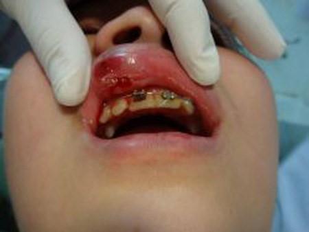 niềng răng có làm mũi cao lên, niềng răng mũi có cao lên không,đang niềng răng có nâng mũi được không, niềng răng có giúp mũi cao hơn không