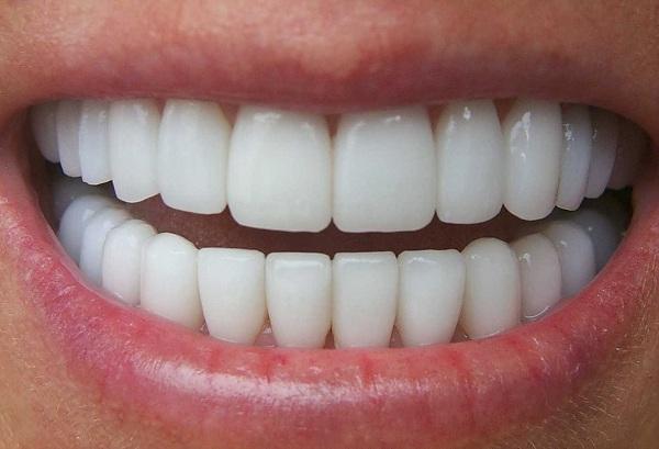 tướng răng cửa to, răng cửa to, răng cửa to xem tướng, răng cửa to và hô, răng cửa to nói lên điều gì, 2 răng cửa to, người có răng cửa to, mài răng cửa to, răng cửa to vuông, răng cửa to và thưa, răng cửa to thì sao, 2 răng cửa to và hô, răng cửa to và dài, râng cửa to và hô nên làm gì, răng cửa to tướng số, răng cửa to nên làm gì, răng cửa to có ý nghĩa gì