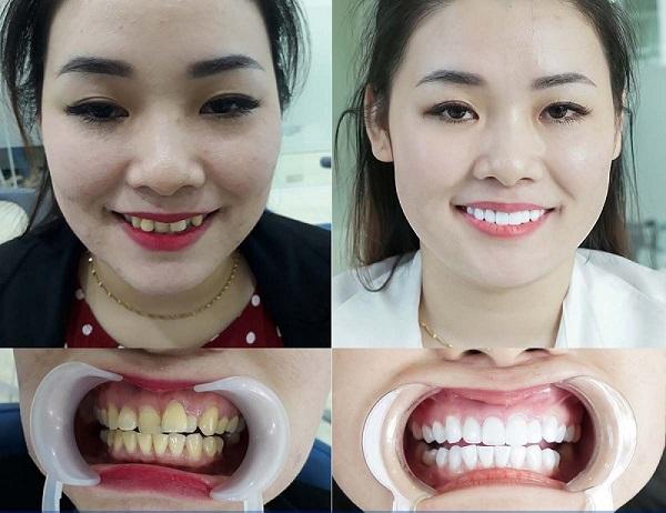 răng lệch lạc nên niềng hay bọc sứ, răng lệch, răng lệch lạc, niềng răng lệch lạc, niềng răng lệch lạc là gì, sửa răng lệch, răng lệch lạc chữa thế nào, niềng răng lệch lạc mất bao lâu, giá chỉnh răng lệch lạc
