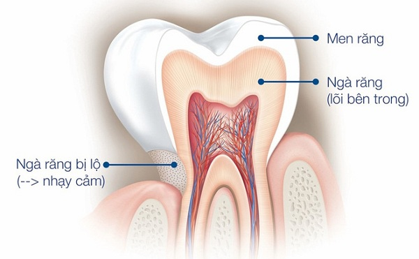 răng nhạy cảm, răng nhạy cảm là gì, điều trị răng nhạy cảm, cách chữa bệnh răng nhạy cảm, cách chữa răng nhạy cảm, triệu chứng răng nhạy cảm, biểu hiện của răng nhạy cảm, nguyên nhân răng nhạy cảm