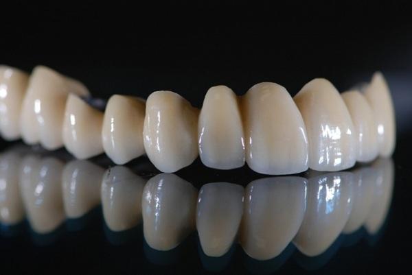bọc răng sứ titan, quy trình bọc răng sứ titan, hình ảnh bọc răng sứ titan, review bọc răng sứ titan, bọc răng sứ titan có tốt không, bọc răng sứ titan được bao lâu, bọc răng sứ titan có bị đen không, bọc răng sứ titan ở đâu, bọc răng sứ titan giá bao nhiêu, bọc răng sứ titan giá rẻ, giá bọc răng sứ titan, bọc răng bằng sứ titan, có nên bọc răng sứ titan, có nên bọc răng sứ titan không, nhược điểm của bọc răng sứ titan, chi phí bọc răng sứ titan