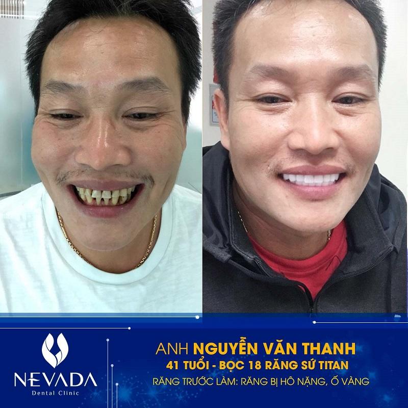 răng sứ titan, răng sứ titan là gì, răng sứ titan có mấy loại, răng sứ titan có tốt không, răng sứ titan sử dụng được bao lâu, răng sứ titan có bị đen không, răng sứ titan giá, răng sứ titan bao nhiêu tiền, hình ảnh răng sứ titan