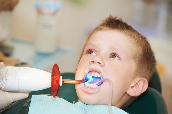 trẻ bị sâu răng hàm phải làm gì, trẻ em sâu răng hàm phải làm gì, trẻ 5 tuổi sâu răng hàm, trẻ 4 tuổi sâu răng hàm, trẻ bị sâu răng hàm trên, trẻ 3 tuổi bị sâu răng hàm, trẻ 2 tuổi bị sâu răng hàm