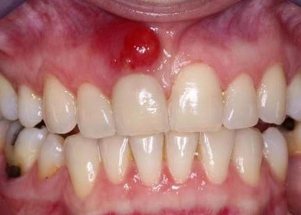 chân răng bị sưng có mủ, chân răng sưng có mủ, răng sưng mủ chảy máu